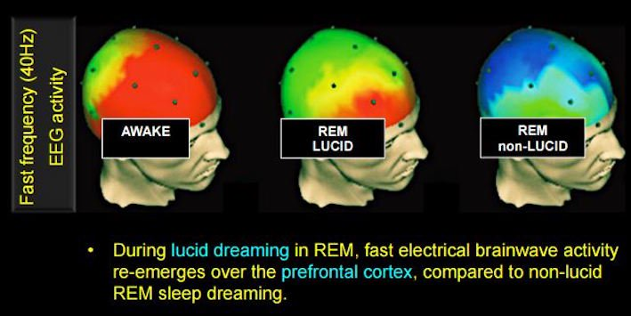 Lucid dreaming creates fast electrical brainwave activity