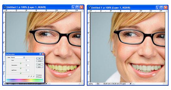 Come sbiancare i denti con Photoshop